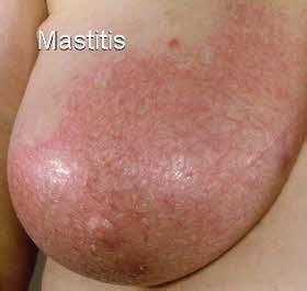 Breast implant illness symptoms, explantation jpg 280x265